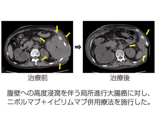 図5:免疫チェックポイント阻害剤著効例