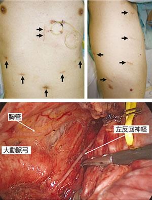 図2:胸腔鏡・腹腔鏡下食道切除