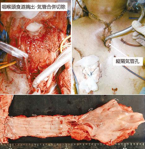 図4:咽・喉頭食道摘出術・縦隔気管孔造設術(いわゆるGrillo手術)