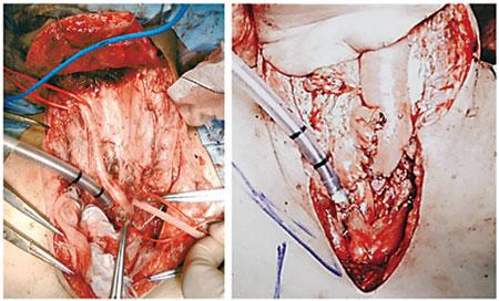 図5:咽・喉頭食道摘出術・縦隔気管孔造設術(いわゆるGrillo手術)