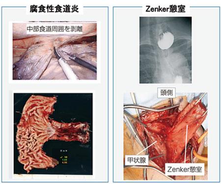 図6.良性食道疾患に対する手術