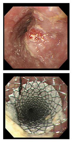 図5.狭窄を伴う食道癌に対するステント留置