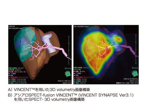 図2:機能的肝体積に基づいた術前手術手技シミュレーション