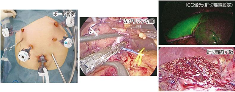 図5:腹腔鏡下左肝切除