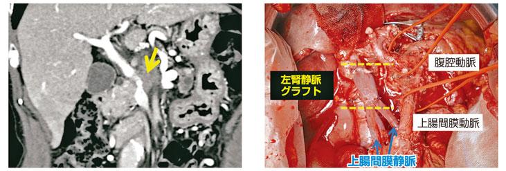 図15:門脈合併切除PD(左腎静脈グラフト)