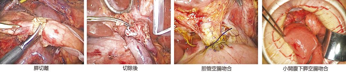 図16:腹腔鏡下膵頭十二指腸切除術