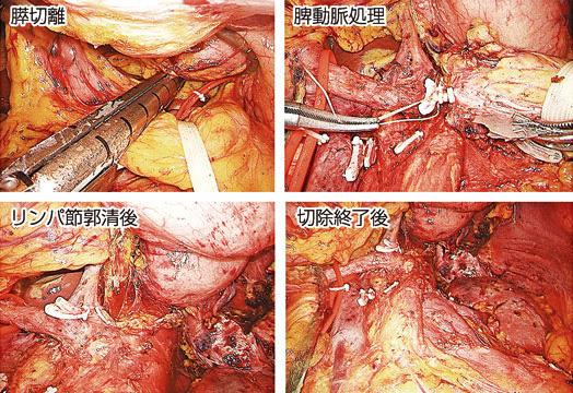 図17:膵癌に対する腹腔鏡下尾側膵切除