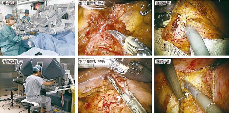 図1:ロボット支援下手術