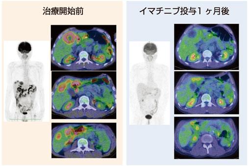 図6:胃GIST、多発肝転移に対するイマチニブ療法