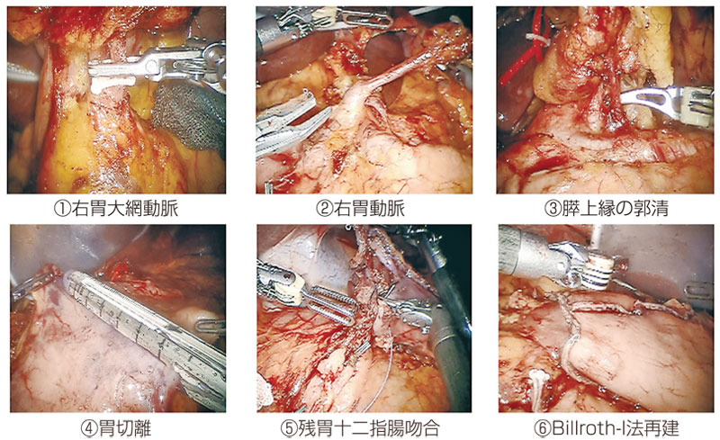 図1:ロボット支援下幽門側胃切除